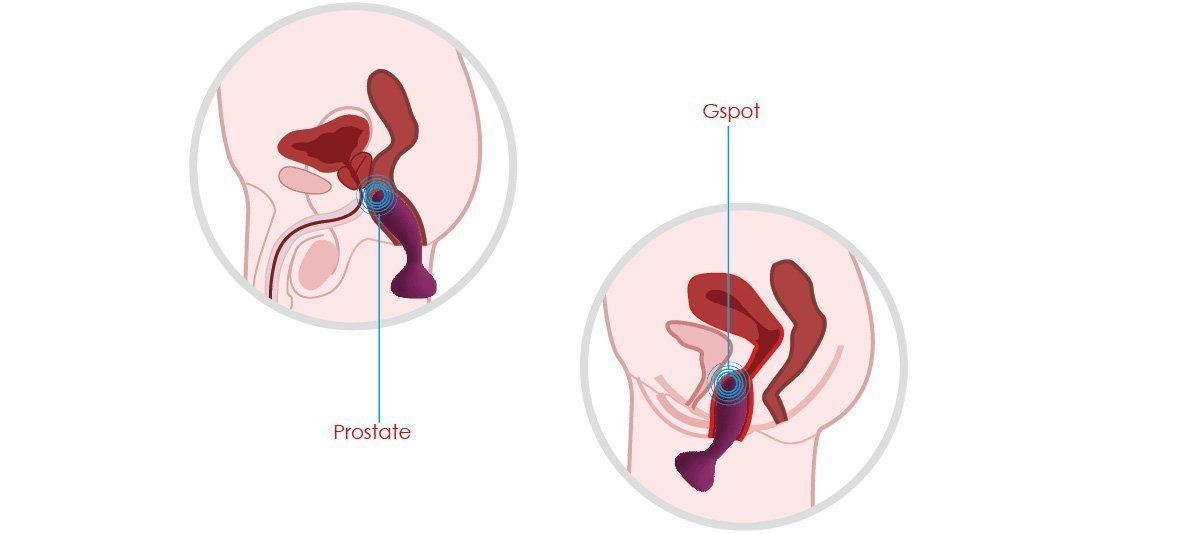 prostate and Anal pain